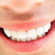 ¿Los primeros peces tenían dientes?